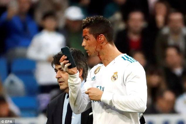 Si reagoi mamaja e të dashurës pas incidentit të Ronaldos